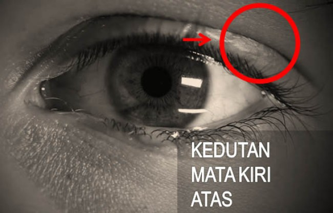 Arti Kedutan Mata Kiri Atas Menurut Primbon