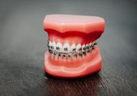 Cara mengeluarkan Ulat Gigi dengan Bawang Merah