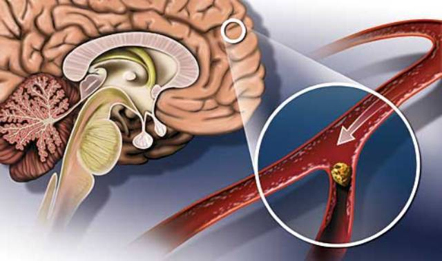 Профилактика тромбоза: как предотвратить опасное заболевание. Что пить для профилактики тромбов