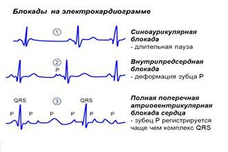 59e10d35c290759e10d35c2954 - Slow intraventricular conduction what are these ECG indicators