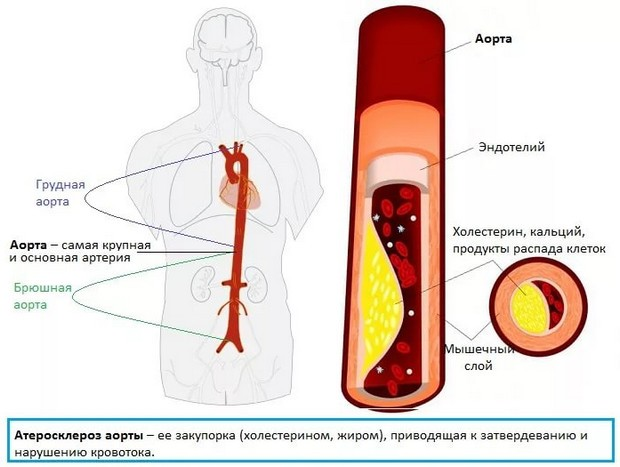 склерозирование аорты