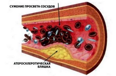 патогенез склероза аорты