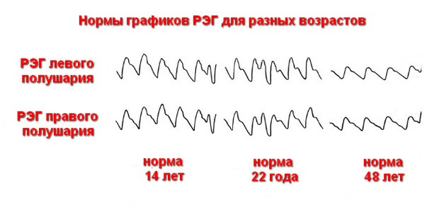 реоэнцефалограмма норма