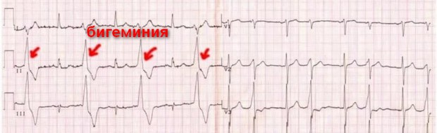 бигеминия на кардиограмме