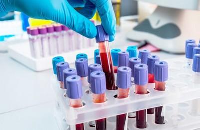 Если мало кальция в анализе крови thumbnail