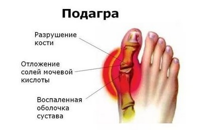 мочевая кислота повышена в крови