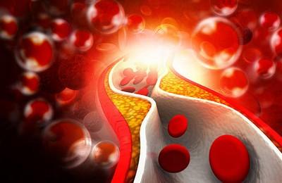 анализ на холестерин