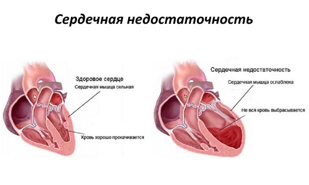 развитие сердечной недостаточности