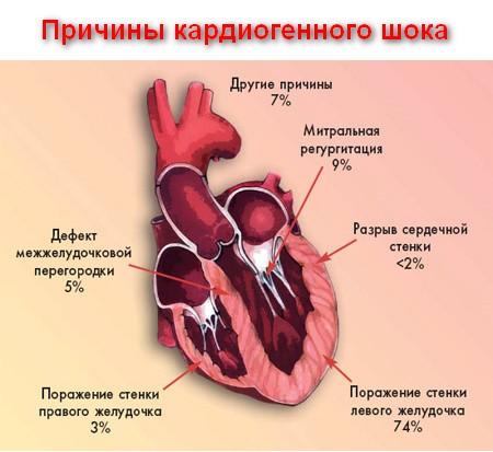 причины развития кардиогенного шока