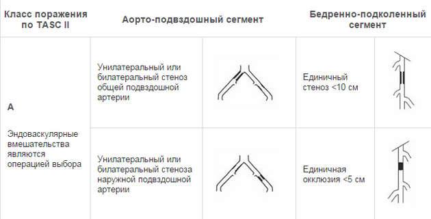 классификация класс A
