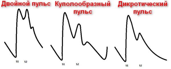 двойные пульсовые волны