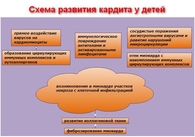 схема развития кардита у детей