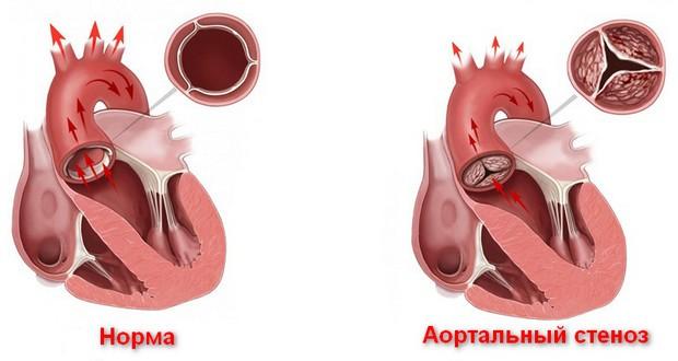 стеноз аорты что это такое