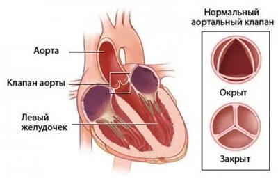 стеноз аорты классификация по градиенту