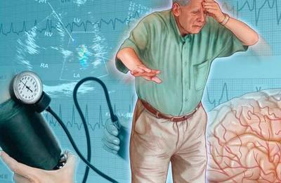лакунарный инсульт симптомы