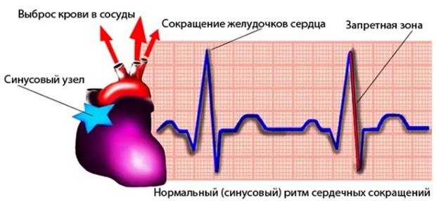 синусовый ритм сердца что это значит
