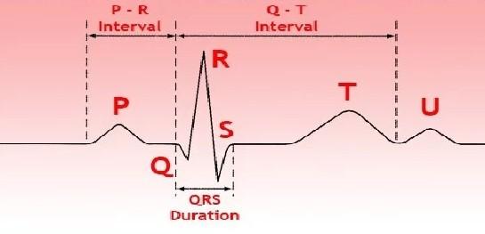 как выглядит синусовый ритм на ЭКГ