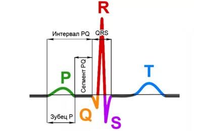синусовая аритмия на ЭКГ