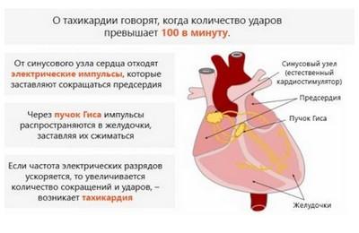 причины синусовой тахикардии