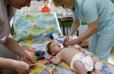 Перикардит у детей: экссудативный, гнойный, фиброзный. Перикардит у детей