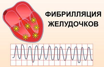 классификация фибрилляции желудочков