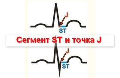 сегмент ST в диагностике