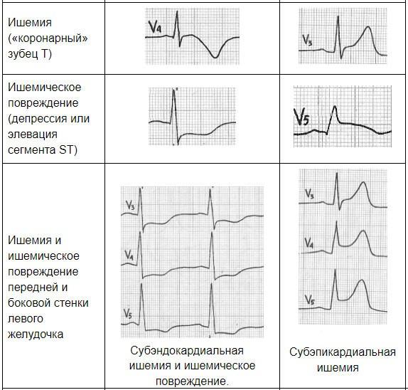 примеры кардиограмм при ишемии