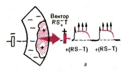 вектор при субэпикардиальной ишемии