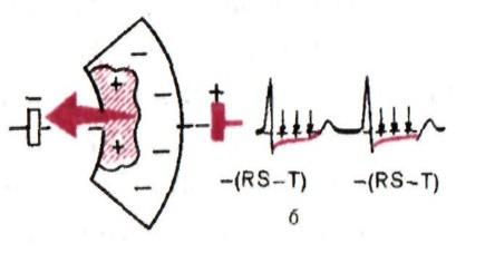 вектор при субэндокардиальной ишемии