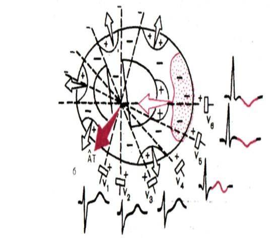 векторная картина при субэпикардиальной ишемии