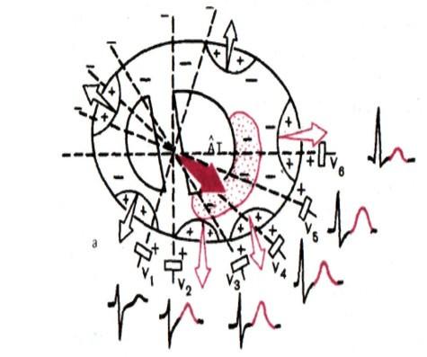векторная картина при субэндокардиальной ишемии