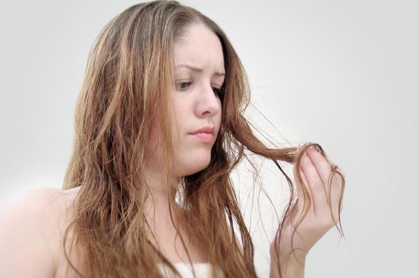 女性 薄毛