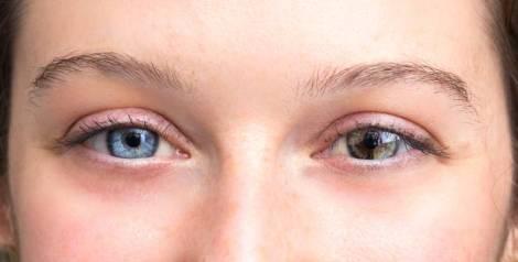 ¿Por qué hay personas que tienen ojos de distinto color?