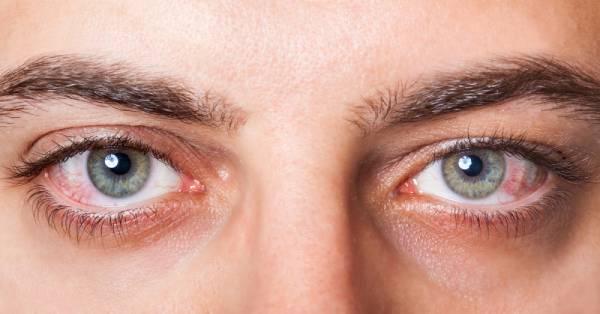 por qué algunas personas duermen con los ojos abiertos
