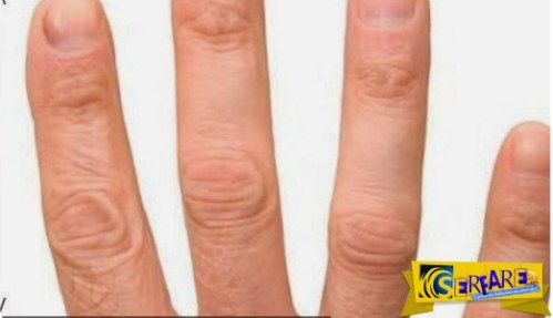 Γιατί έχουμε 5 δάχτυλα σε κάθε χέρι και όχι 4 ή 6;