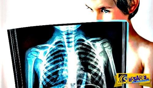 Πόσο αυξάνουν τις πιθανότητες καρκίνου οι εξετάσεις με ακτινοβολία