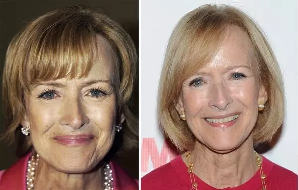 judy woodruff plastic surgery