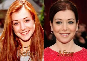 alyson hannigan facelift