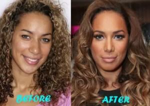 leona lewis plastic surgery