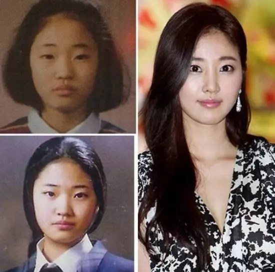 park min young facelift