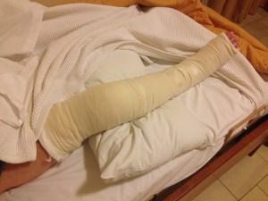 John's broken leg