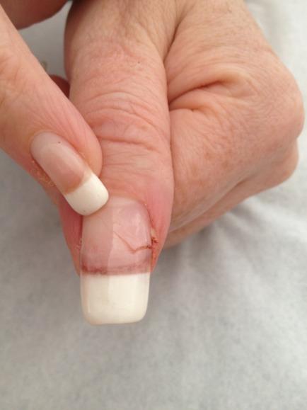 Mma Nail Damage : damage, Acrylic, History, Early, Pitfalls., Seriously, Nails
