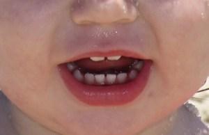 Cómo aliviar la salida de los dientes del bebé