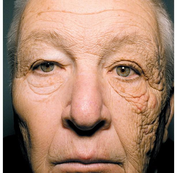 防曬好重要 I:紫外線 UVA 與 UVB