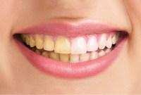 30 Cara Sukses Memutihkan Gigi dengan Cara Alami