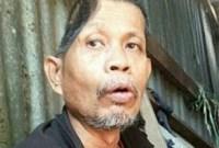Kehilangan Separuh Kepala, Ditinggal Istri dan Harus Minum Air Sungai, Kisah Pria ini Bikin Nangis!