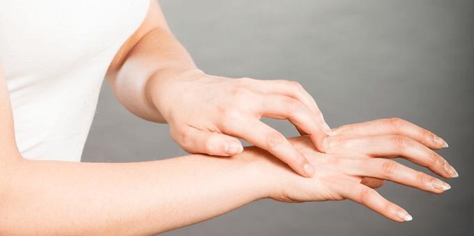 Ciri Alergi Udang dan Cara Ampuh Mengatasinya