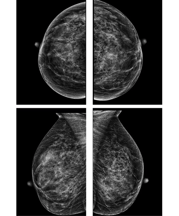 Clinically Indeterminate Breast Lesions with Normal ...