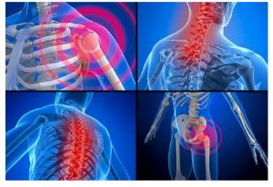 radiografii
