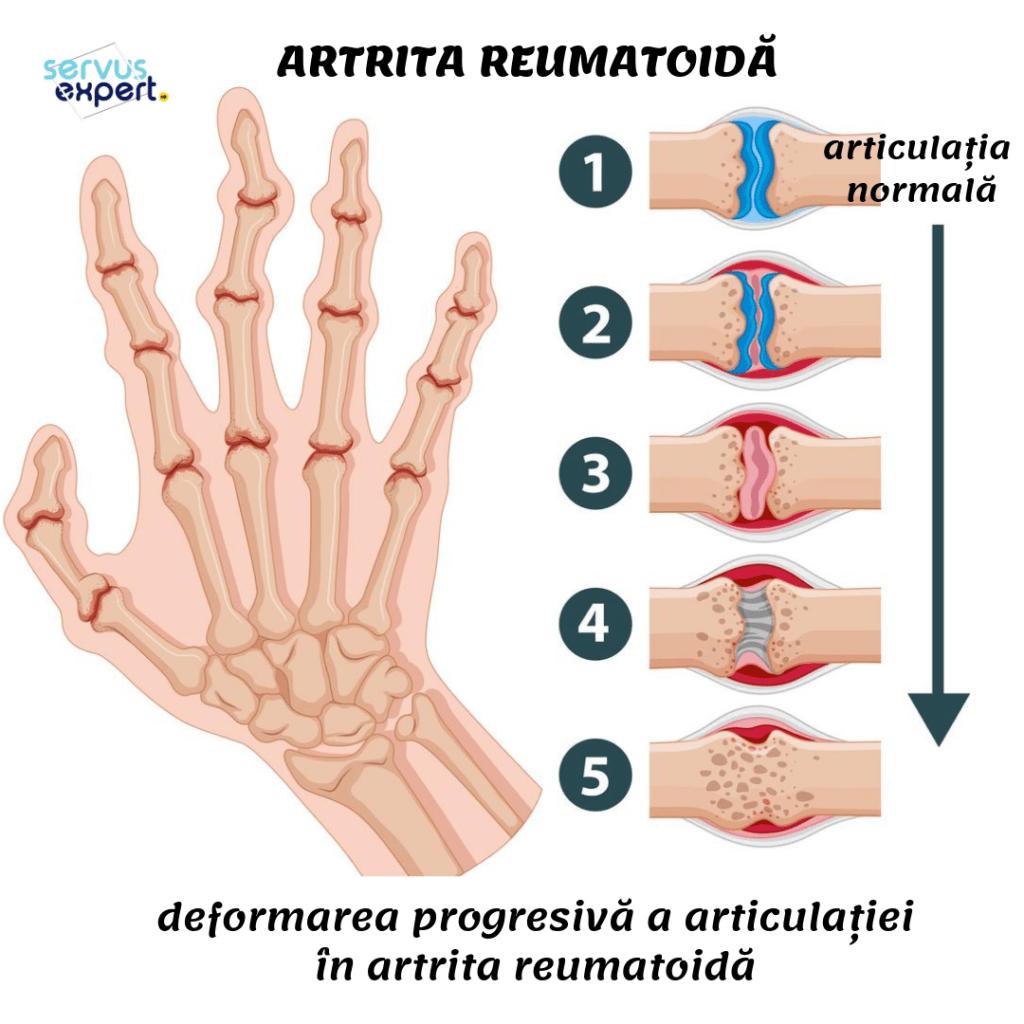 Artrita reumatoida analize sange